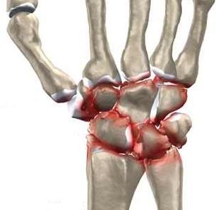 dezvoltarea articulației încheietura mâinii după rănire
