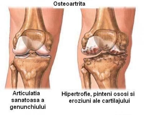 artrita artroso a articulației genunchiului cum se tratează