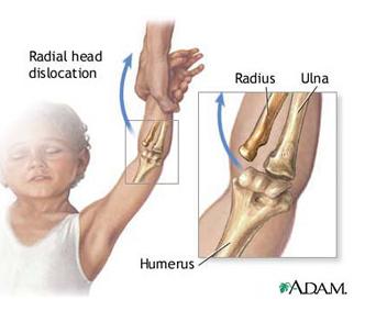 exerciții pentru durere în articulația cotului)