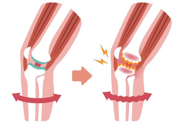 gonartroza genunchiului 2 grade istoric medical)