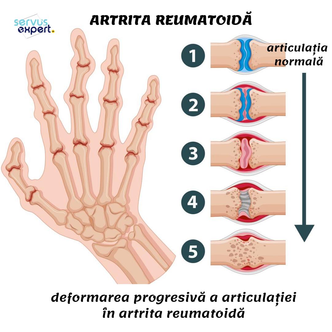 artrita reumatoida cervicala