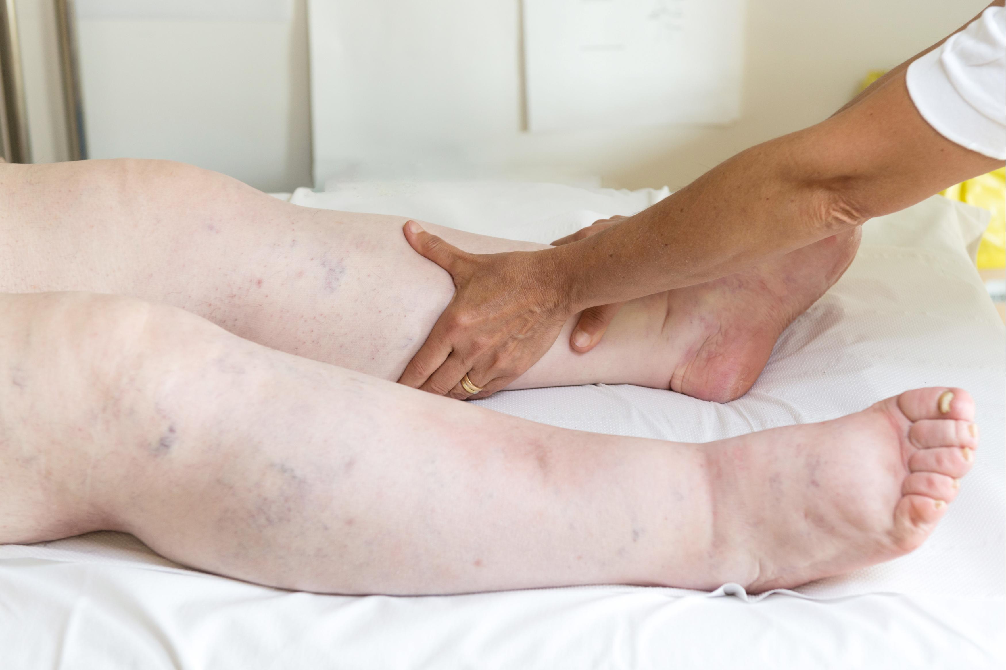 umflarea picioarelor sub articulație tratamentul eficient al articulației șoldului