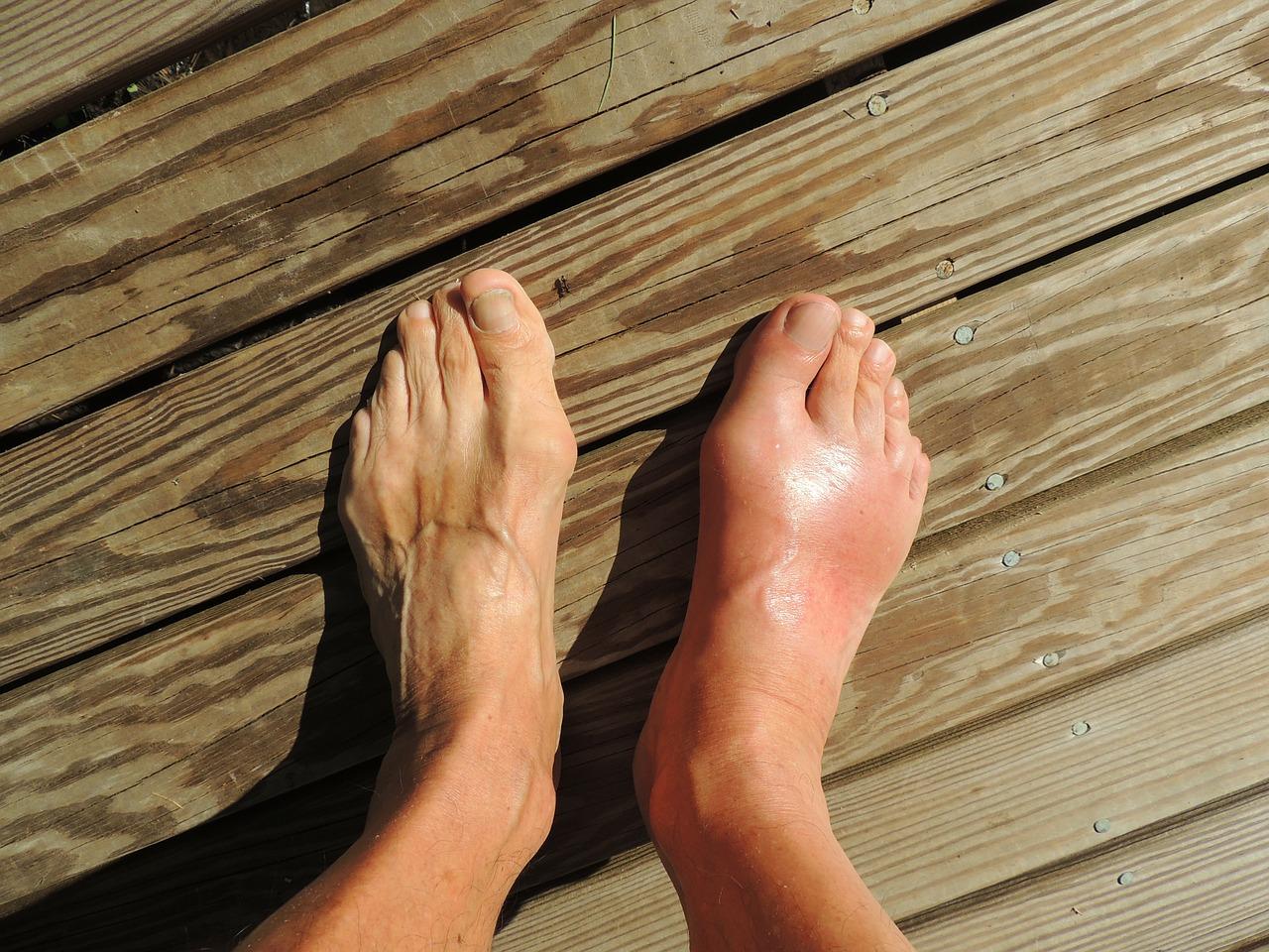 cauza artrita deget de la picior)