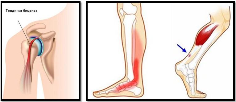 ce fac sportivii când rănesc articulațiile preparat glucozamină