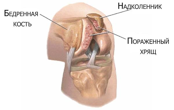 înseamnă consolidarea cartilajului și a articulațiilor)