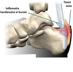 dureri la nivelul picioarelor deasupra articulației gleznei)