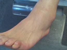 tratamentul edemului cu entorsa gleznei)