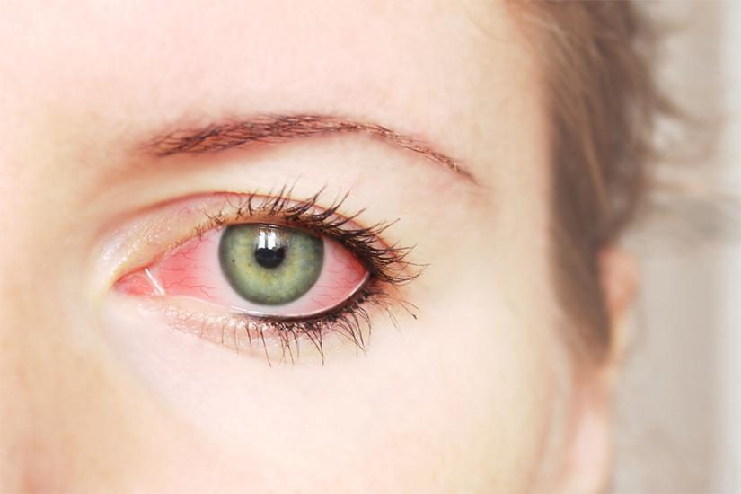 boli ale țesutului conjunctiv și manifestările lor oculare)