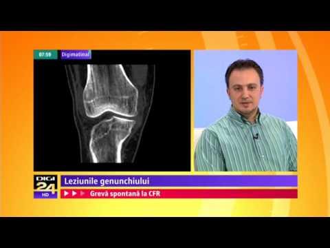 exerciții de dimineață pentru dureri articulare semne inițiale de artroză la încheietura mâinii