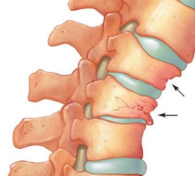 artroza coloanei vertebrale decât tratarea