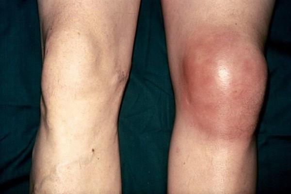 înghițit durere ascuțită articulația gleznei