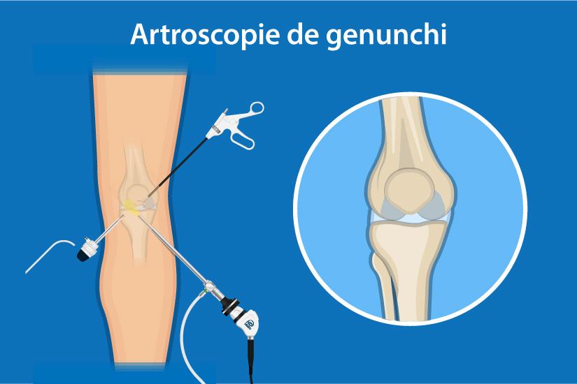 hemartroza genunchiului