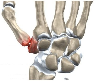 leziuni mari ale degetului mare inflamație cronică a țesutului conjunctiv