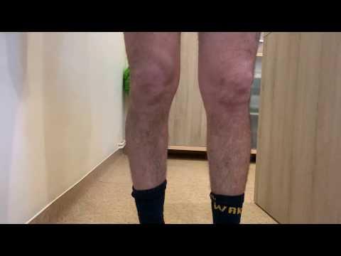 dureri de ligament la șold tratarea inflamației genunchiului