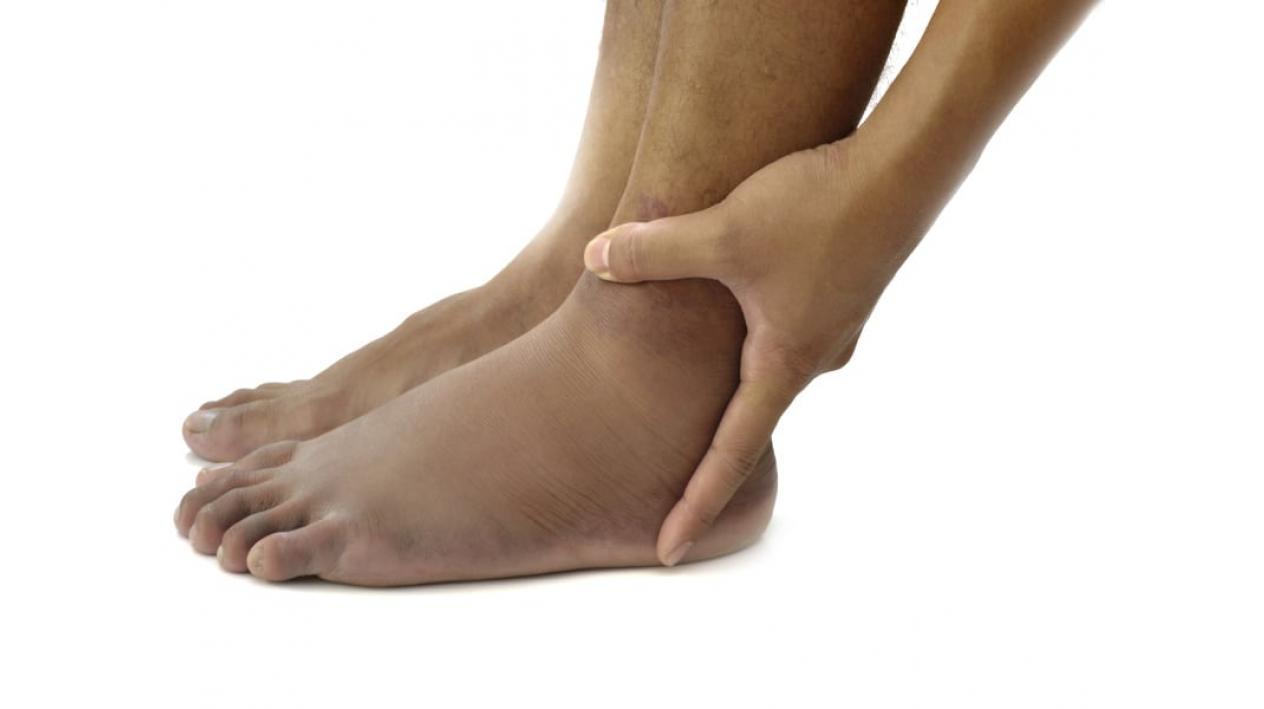 umflarea picioarelor; dureri articulare)