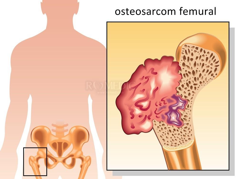 articulația șoldului și piciorul întreg doare mâna zboară din tratamentul articulației