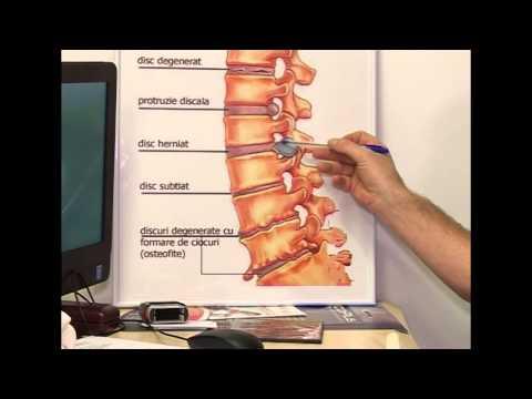 inflamarea articulațiilor mari durere volatilitate observată cu)