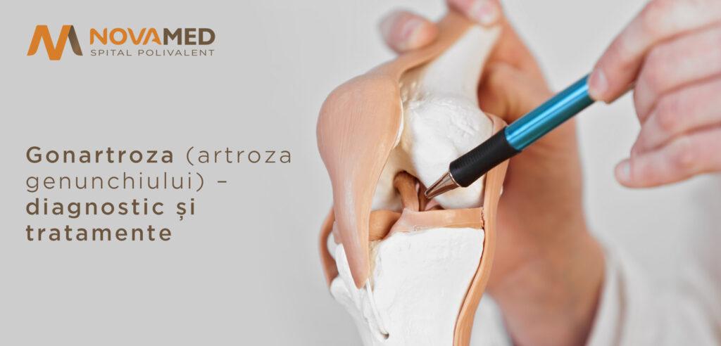 GONARTROZA - cauze și tratament pentru dureri de genunchi