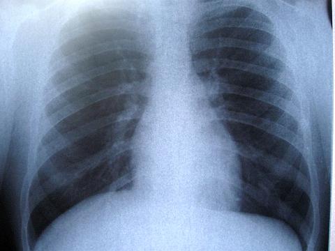 dureri articulare de cancer pulmonar