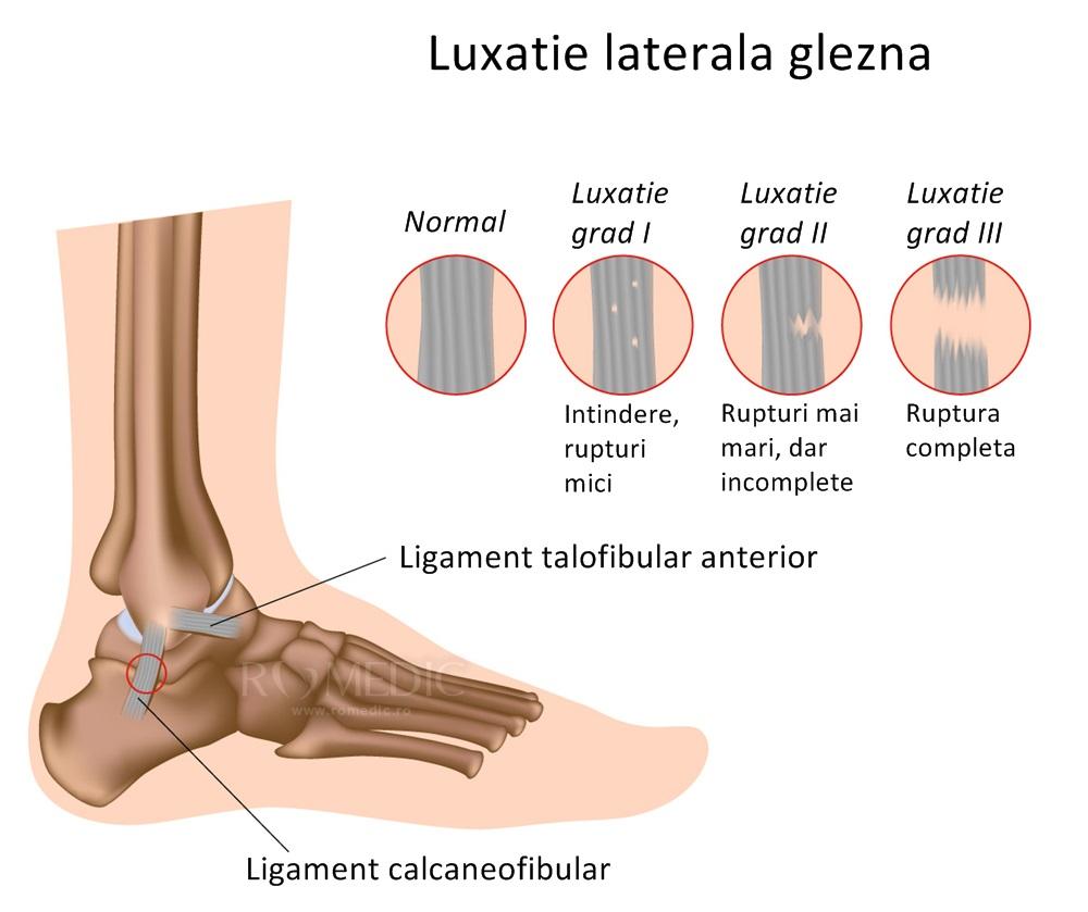tratamentul simptomelor de luxație articulară