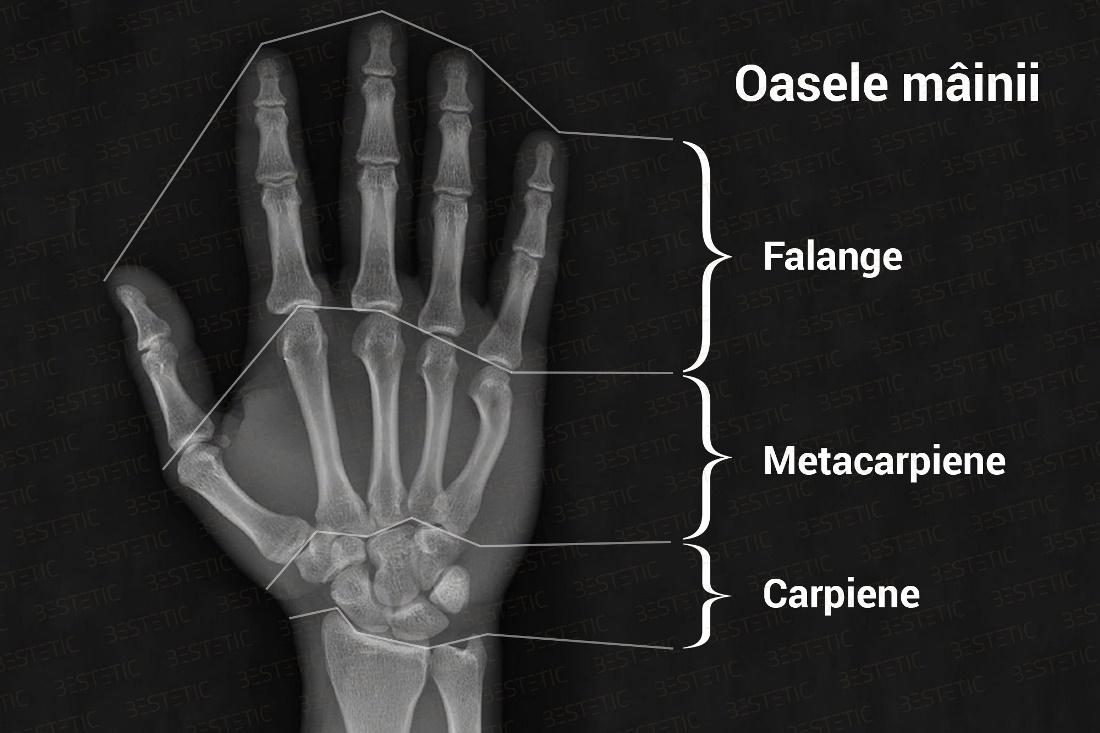 ce să faci cu durerea articulară artroza articulațiilor genunchiului tratament de 1 grad