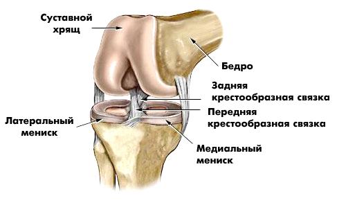 deteriorarea meniscului genunchiului