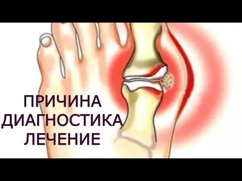 tratamentul osteoartrozei deformante a articulației cotului