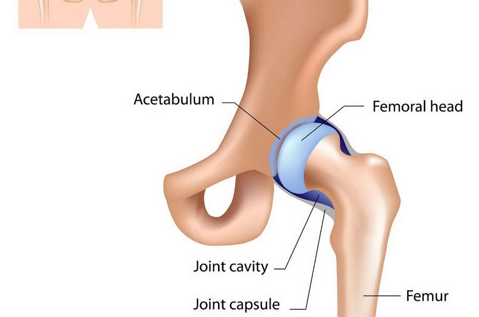 din care durerea acută în articulația șoldului