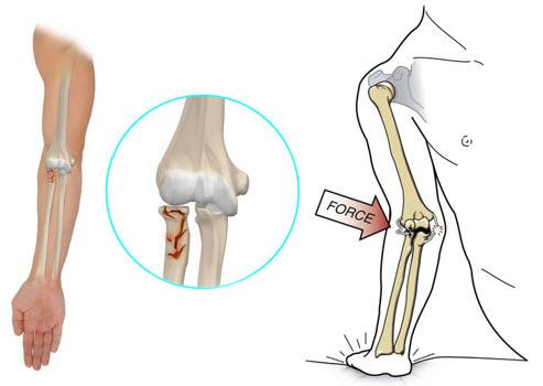 deplasarea fracturii articulației cotului