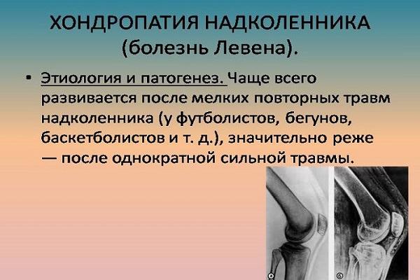 artroza deformată 2 grade ale tratamentului articulației genunchiului)