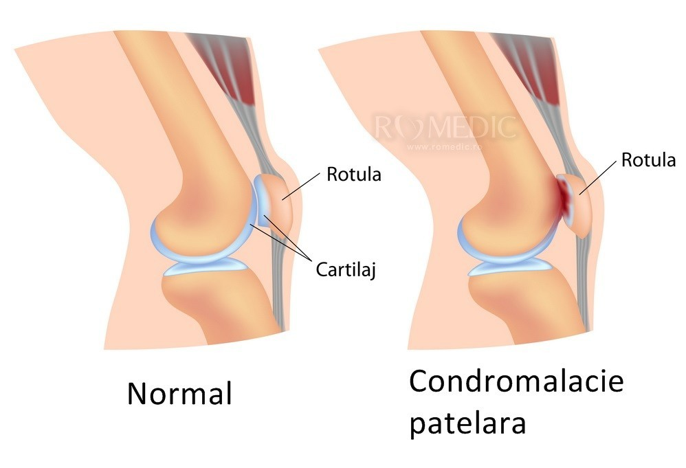 leziune distrofică a tratamentului articulației genunchiului