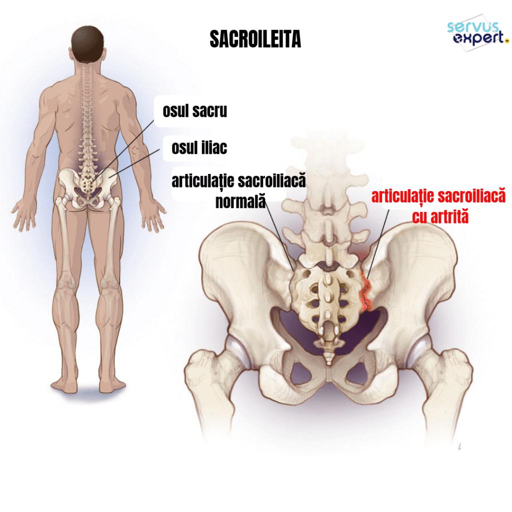 articulații dureroase la spate și șold)