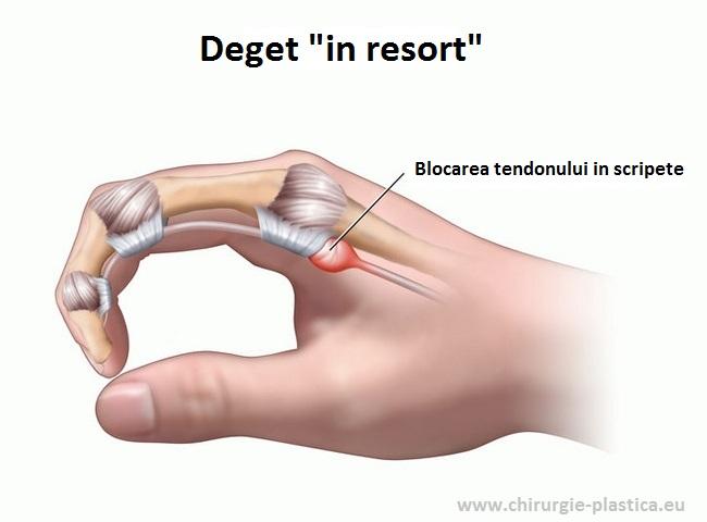 Dureri de articulație degetul mijlociu