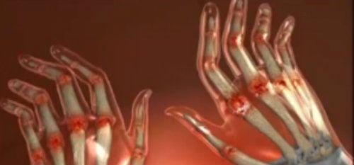 articulațiile doare atunci când mâna este îndoită)