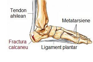 cum să tratezi inflamația articulației brațului cotului