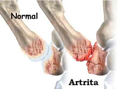 artrita dupa o fractura a degetului