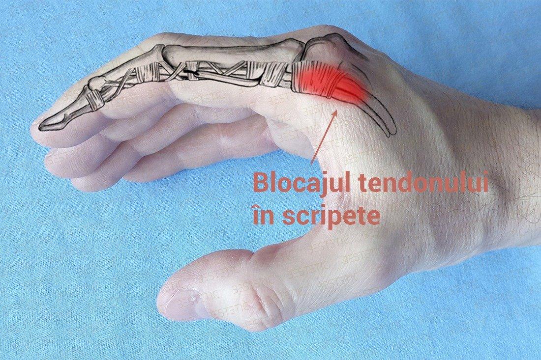 durere în articulația degetului mic pe mâna dreaptă