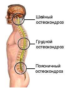 osteochondroza preparatelor coloanei toracice)