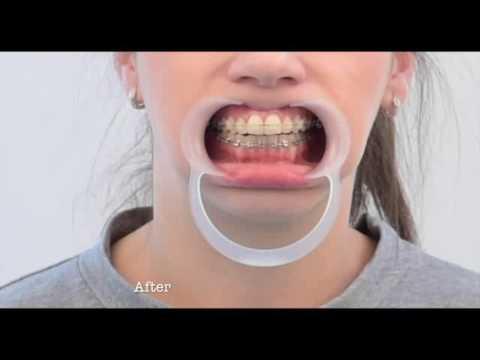 tratament articular al gurii)