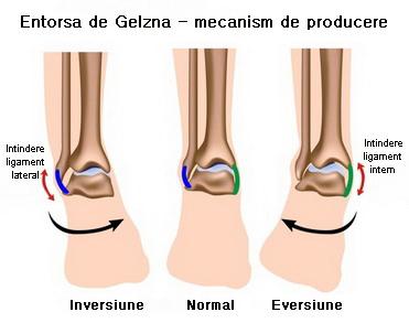 durere și umflare la nivelul articulațiilor gleznei)