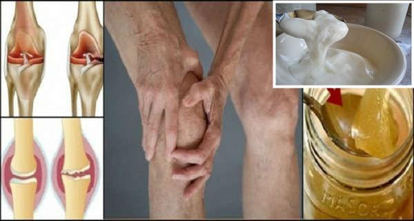 remedii pentru durerea în spate și articulații)