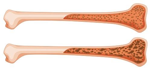 medicamente pentru întărirea oaselor și a articulațiilor diagnosticul durerii articulare la șold