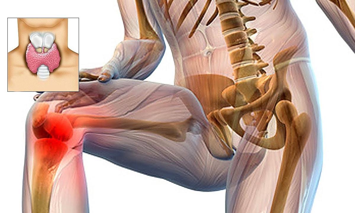 mușchi din dureri articulare)