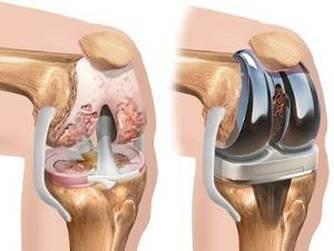 dureri de genunchi după artroplastie