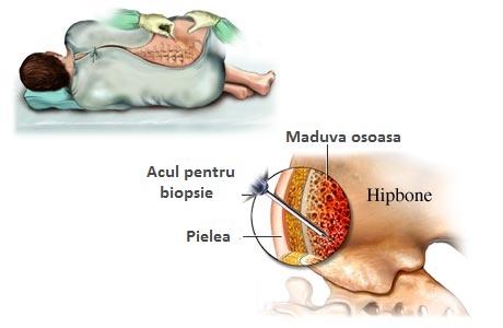 celulele stem analizează tratamentul cu artroză