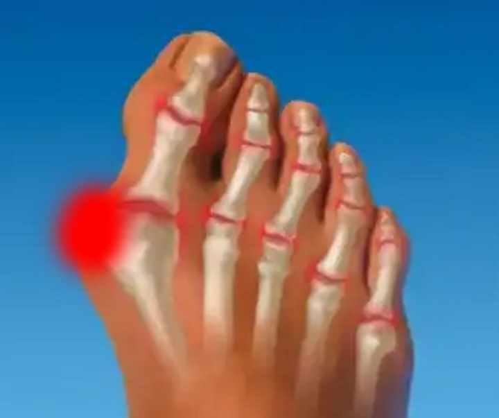 artrita deget de la picior si tocuri)