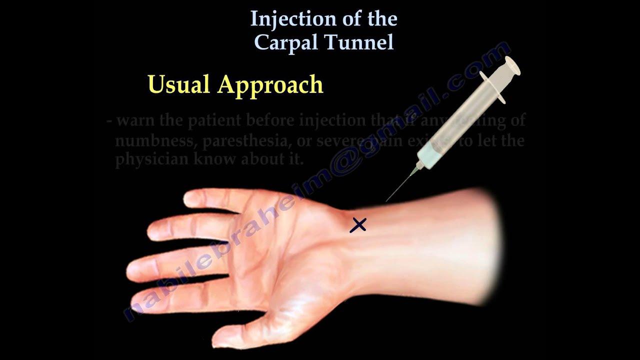 durerea articulară poate fi vindecată recenzii pentru tratamentul artritei degetelor