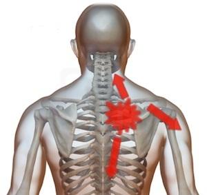 durere în omoplatul drept în articulația cotului