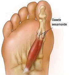 articulația sub degetul mare doare