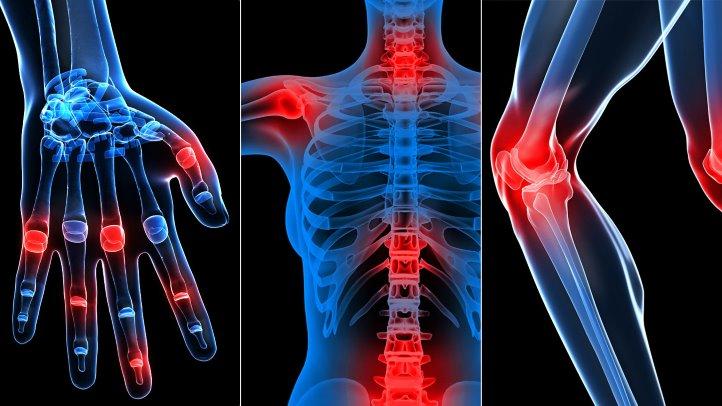 cum să tratezi artroza într-un stadiu incipient)